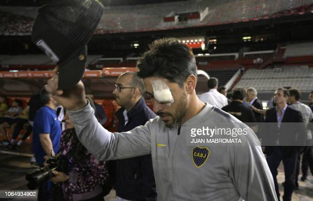 Boca Juniors' Pablo Perez is seen on the field of the Monumental stadium in Buenos Aires with an eye covered after authorities postponed the...