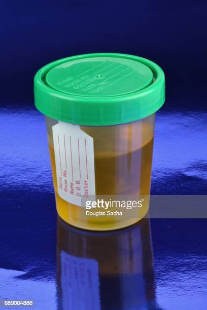 bodily fluid sample - urine sample stock photos and pictures