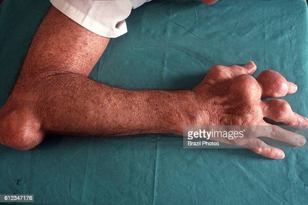 Body deformation caused by gout a medical condition usually characterized by recurrent attacks of acute inflammatory arthritis It is caused by...