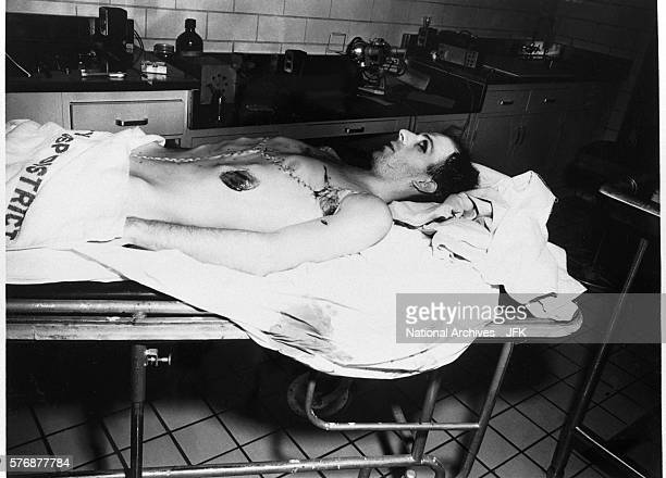 Body of Lee Harvey Oswald After Autopsy