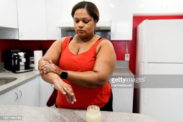 """body positive woman rubbing on homemade hand cream. - """"martine doucet"""" or martinedoucet stock pictures, royalty-free photos & images"""