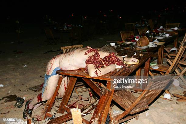 A bomb blast victim lies on a table October 1 2005 in Bali Indonesia Several explosions were reported on Saturday evening in the Indonesian tourist...