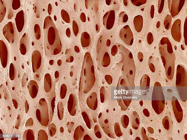 Bone tissue of a hen magnified x25