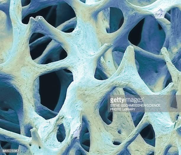 Bone tissue, SEM
