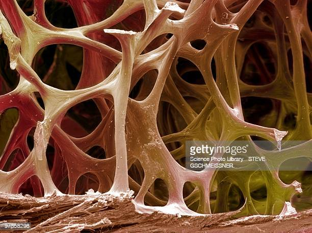 bone tissue, sem - sem stock pictures, royalty-free photos & images