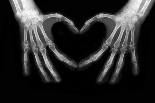 Bones of hands 684931694