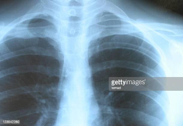 Bones on xray