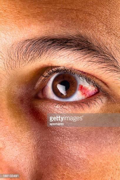 Boodshot eye