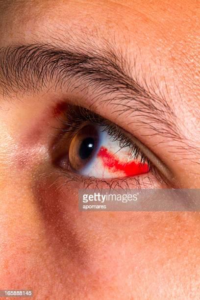 boodshot eye - mottled skin stock pictures, royalty-free photos & images