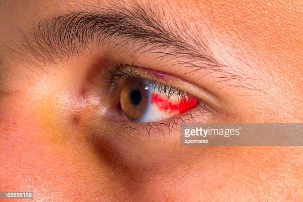 boodshot eye - black eye stock pictures, royalty-free photos & images