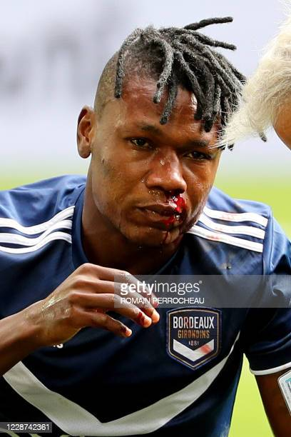 Bordeaux' Nigerian forward Samuel Kalu is seen injured to the nose during the French L1 football match between Bordeaux and Nice on September 27,...