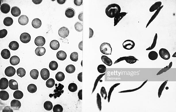Boston MA Sickle cell anemia a disease primarily affecting the Black communtity has been much in the news lately but much of the information has been...