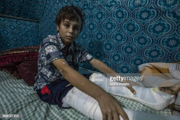 Both of Tomas's legs were broken by an airstrike which hit his house that he hid in Thomas an 11year old Yazidi boy from Shingal who was kidnapped by...