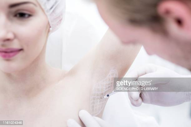 botox injection in underarm - male armpits stock pictures, royalty-free photos & images