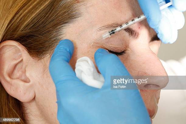Botox injection on January 13 2015 in Regensburg Germany