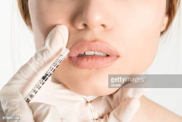 botox injection - botox stock pictures, royalty-free photos & images