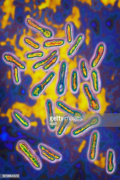 Botulinus Clostridium botulinum This bacterium secretes a toxin Botox which inhibits the neurons responsible for muscle contraction Image produced...