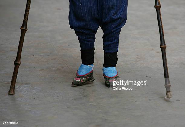 A bound feet woman walks at Liuyi Village on April 2 2007 in Tonghai County of Yunnan Province China Liuyi Village is known as the Bound Feet Women...