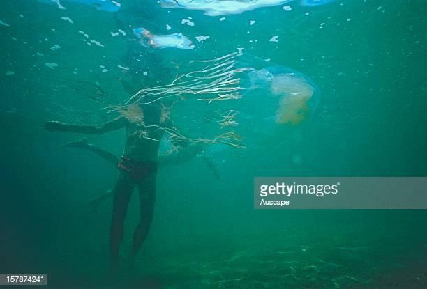 Box jellyfish and unsuspecting swimmer North Queensland Australia