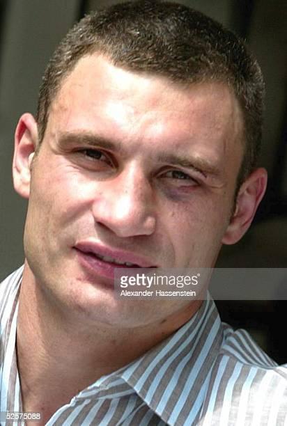 Boxen WBC WM Kampf im Schwergewicht 2004 Los Angeles Vitali KLITSCHKO / UKR wurde nach dem Kampf an seinem linken Auge mit 16 Stichen genaeht 250404