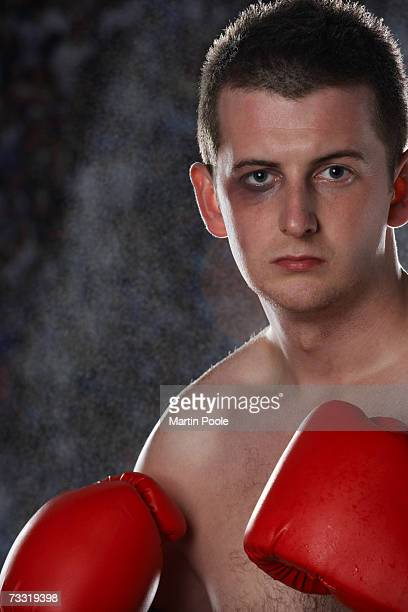 boxer with black eye, portrait - black eye stock pictures, royalty-free photos & images