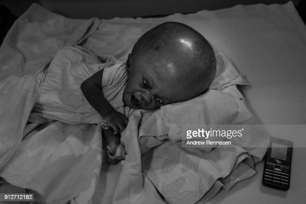 A boy diagnosed with hydrocephalus cries on a bed at Cure Children's Hospital on February 5 2017 in Mbale Uganda Hydrocephalus is a condition in...