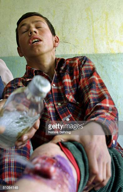 Boy Gasps In Pain As Alcohol Is Poured Over A Wound As He Is Treated For Cutaneous Leishmaniasis, A Disfiguring And Disabling Skin Disease, At A...