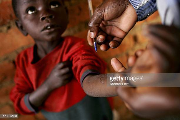A boy has his weight written on his arm for a doctor inside a rural nutrition center mostly for those displaced by war and run in conjunction with...