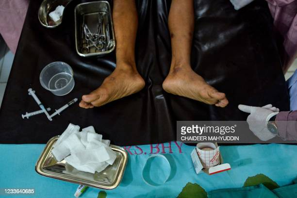Boy is circumcised during a mass circumcision at the Indonesian police hospital in Banda Aceh on June 25, 2021.