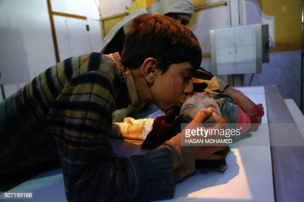 TOPSHOT A boy kisses his relative who was wounded in government shelling in the radiography room of a hospital in Douma in the besieged rebelheld...