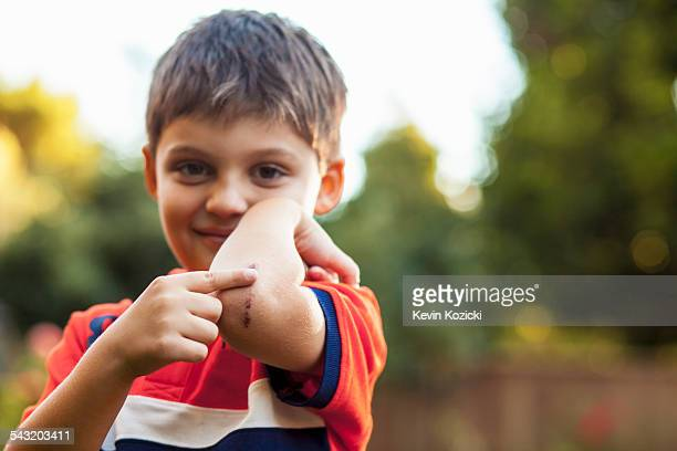 boy pointing at bruise on elbow - equimose imagens e fotografias de stock