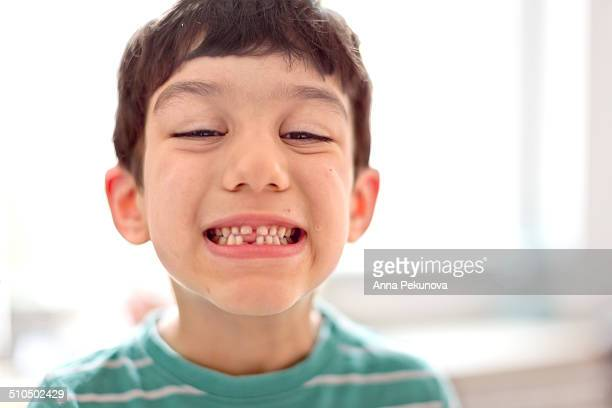 boy showing missing milk tooth - losing virginity stock pictures, royalty-free photos & images