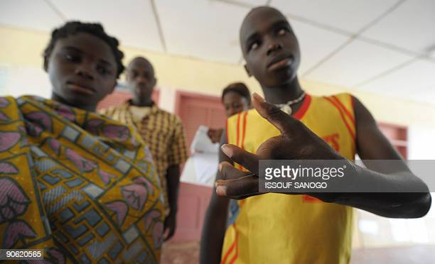 Boy shows his hand deformed by Buruli ulcer, also known as the Bairnsdale ulcer or Searl ulcer, wait to get treatment on September 12, 2009 at a...
