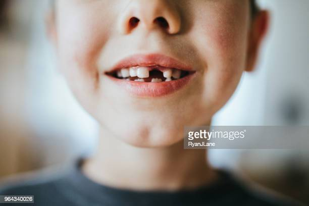 boy shows off missing tooth - human teeth stock pictures, royalty-free photos & images
