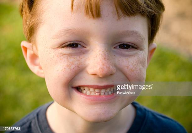 Boy Smiling with Loose Tooth, Happy Redhead Freckle Face Child