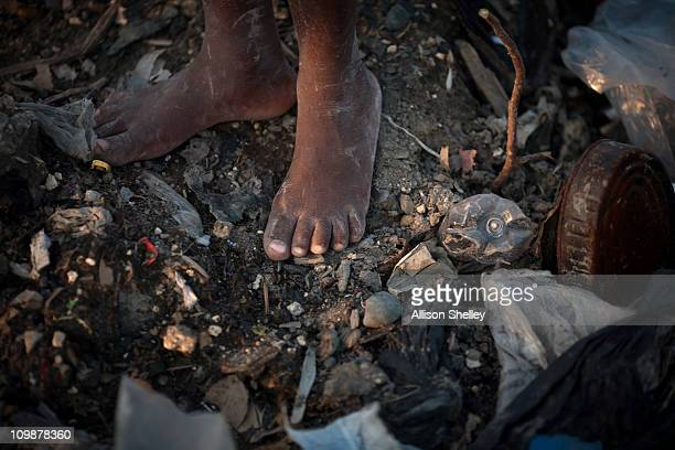 A boy stands barefoot in an unofficial dump in front of a community called Village Alpha March 8 2011 in PortauPrince Haiti The dump rising 15 feet...