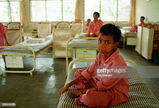 A boy suffering from leprosy is cared for as a patient in the Sitanala Hospital in Jakarta Indonesia