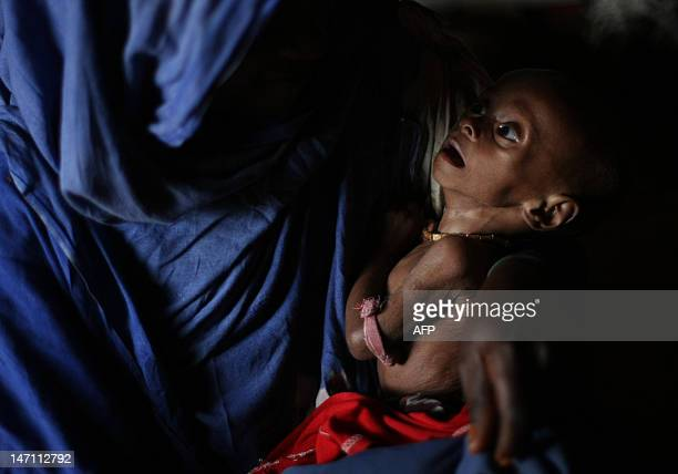 A boy suffering from malnutrition is craddled in the arms of her mother at a camp for Internally Displaced People on the outskirts of Mogadishu...