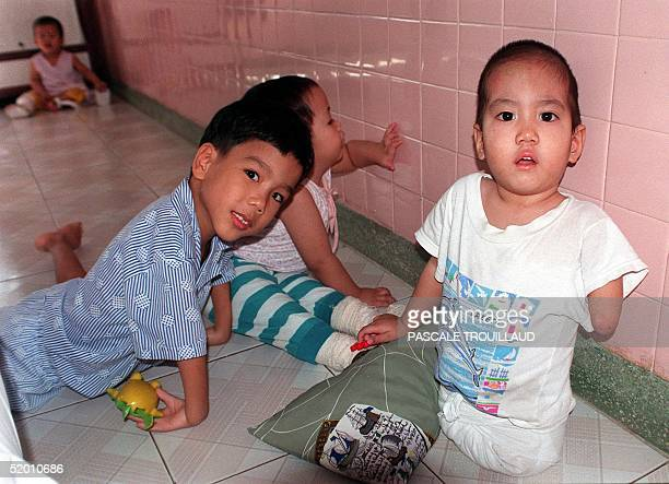 A boy who has only one hand looks at visitors 17 November while playing with others children all from agent orange infected parents in a room at the...