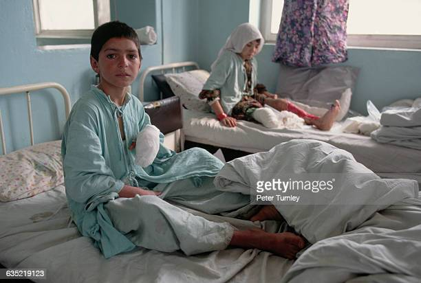 A boy with a bandaged hand sits up next to a girl whose cast has been removed showing a nasty large wound on her leg Both injuries were caused by...