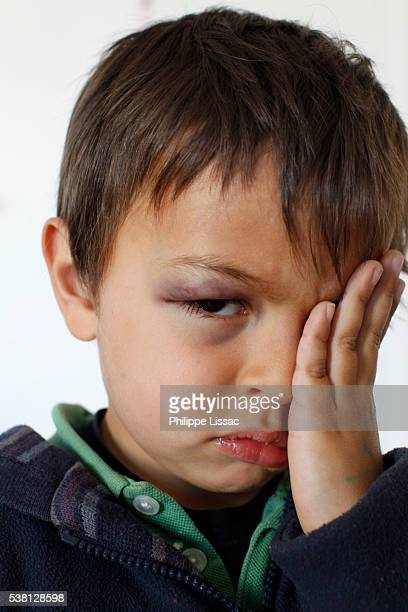 boy with a blue eye - black eye stock pictures, royalty-free photos & images