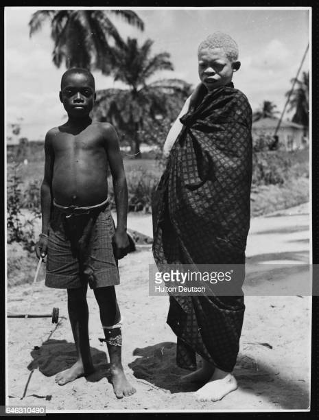 A boy with an albino complexion stands swathed in cloth beside his friend