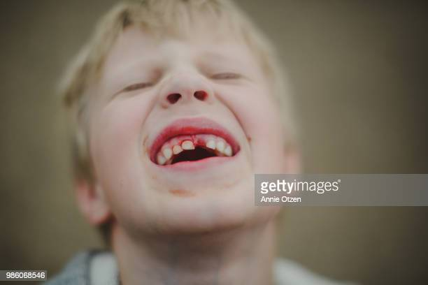 Boy with bleeding tooth