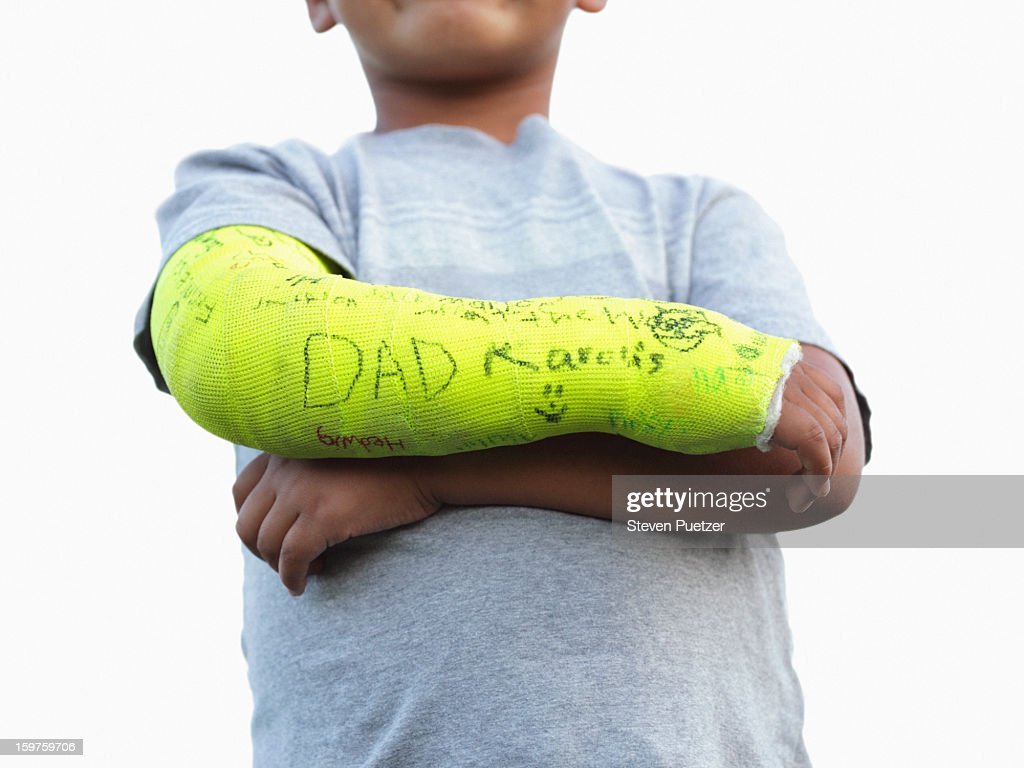 Boy with broken arm in yellow cast : Stock Photo