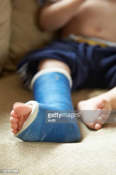 boy with broken leg in cast - cast colors for broken bones stock pictures, royalty-free photos & images