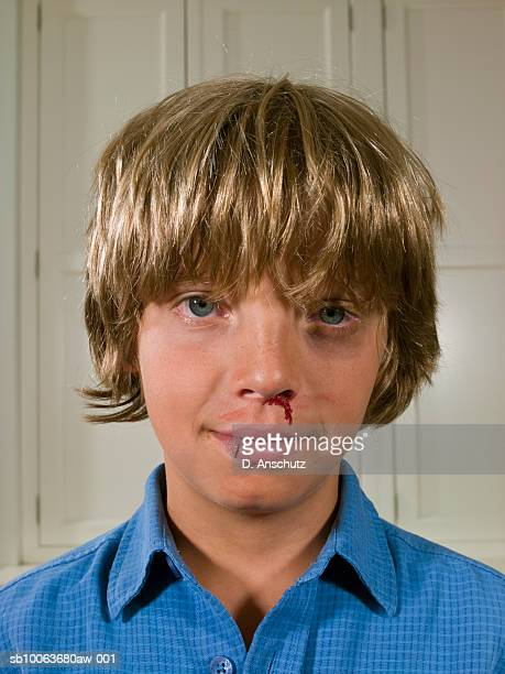 boy (9-11) with bruises and bloody nose, portrait, close-up - black eye stock pictures, royalty-free photos & images
