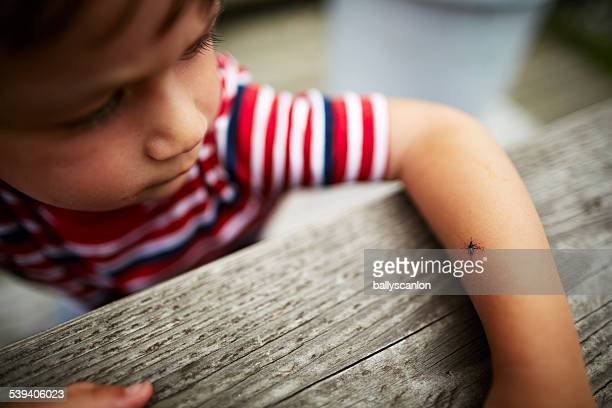 Boy with dead mosquito on his arm