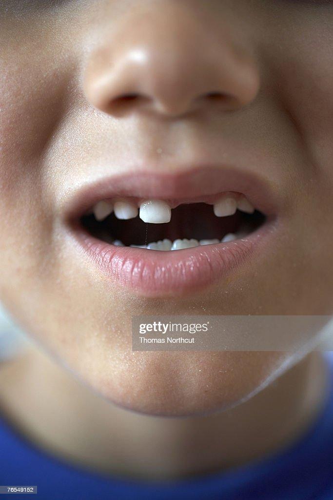 Boy (6-8) with gap in teeth, close-up : Foto de stock