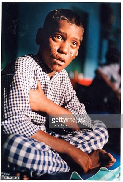 Boy with leprosy near Calcutta ask Tony Bock for cutlines