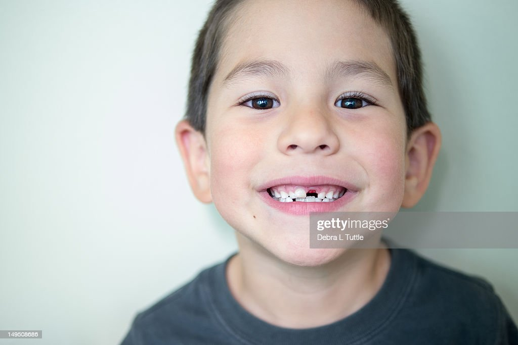 Boy with missing front tooth : Stock Photo
